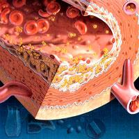 повышенный холестерин крови норма